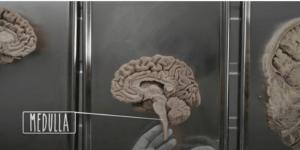 Batang otak memiliki tiga bagian utama