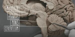 Otak kecil manusia terletak di bawah otak besar.