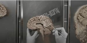 Lobus oksipital terletak pada bagian belakang otak manusia.