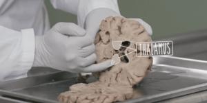thalamus terdiri dari epyThalamus, hipothalamus, thalamus dorsal, dan ventral thalamus.